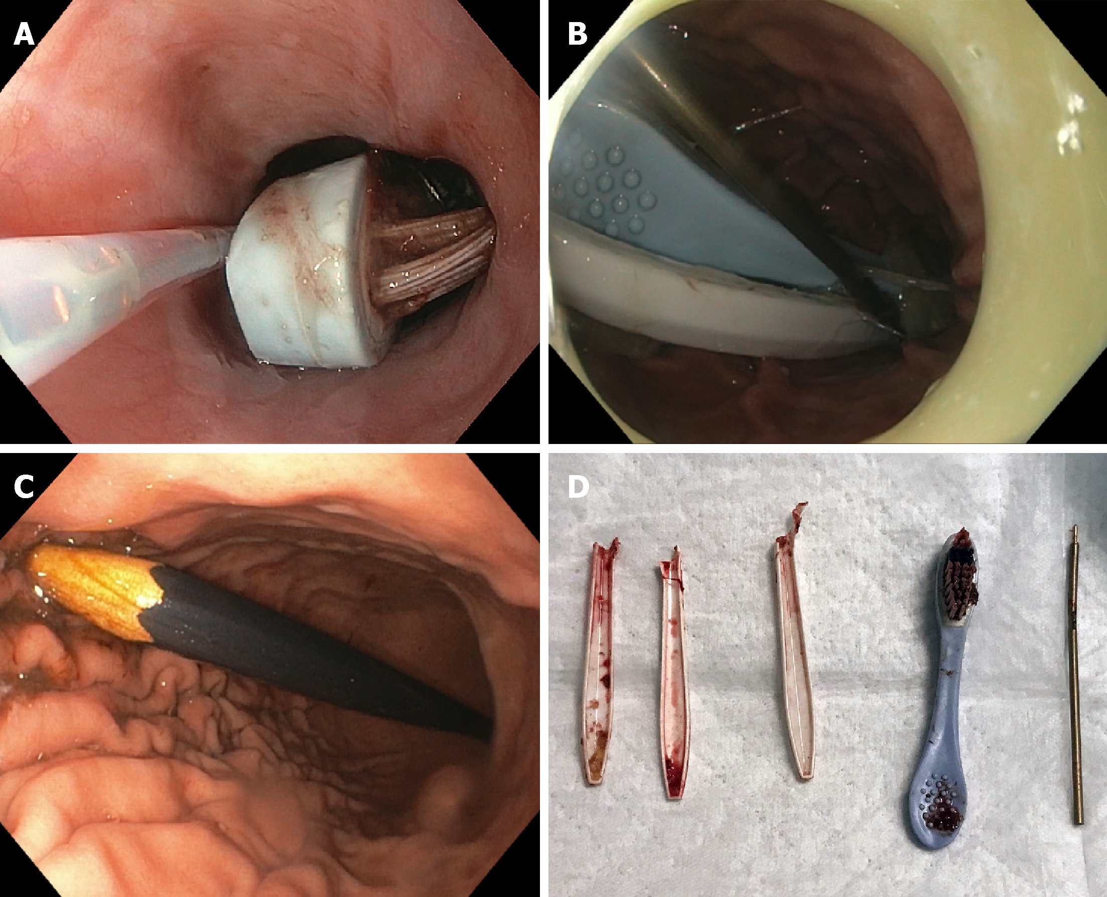 Foreign object ingestion and esophageal food impaction: An update