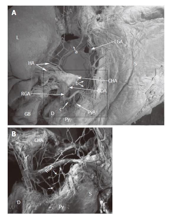 Surgical Anatomy Of The Innervation Of Pylorus In Human And Suncus