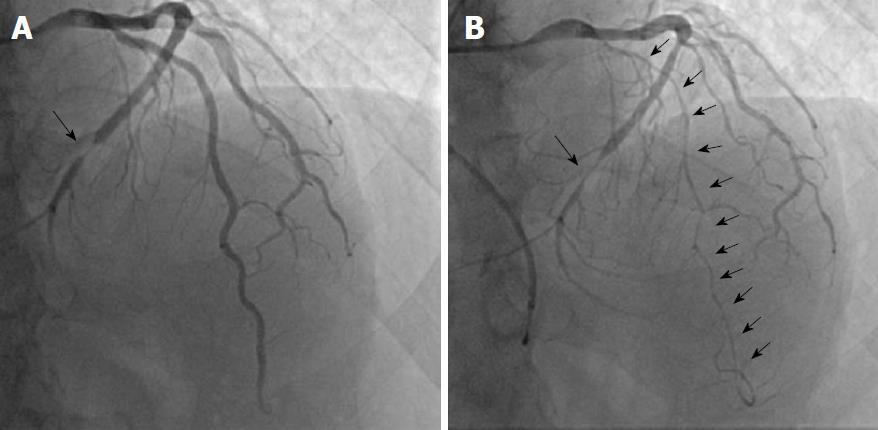 Coronary spasm: It's common, but it's still unsolved