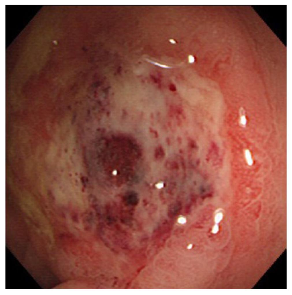 nonsteroidal enteropathy