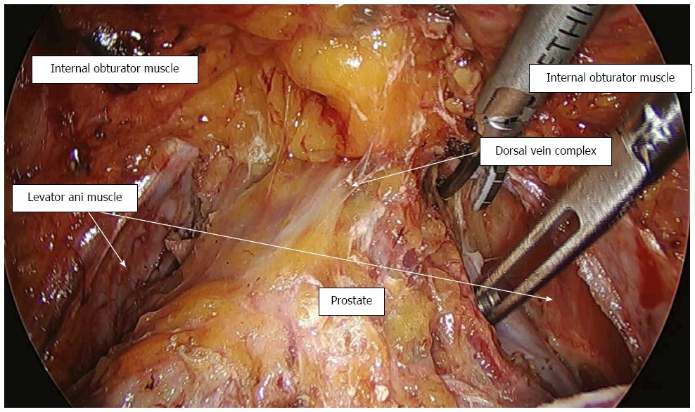 Technical feasibility of laparoscopic extended surgery beyond total ...