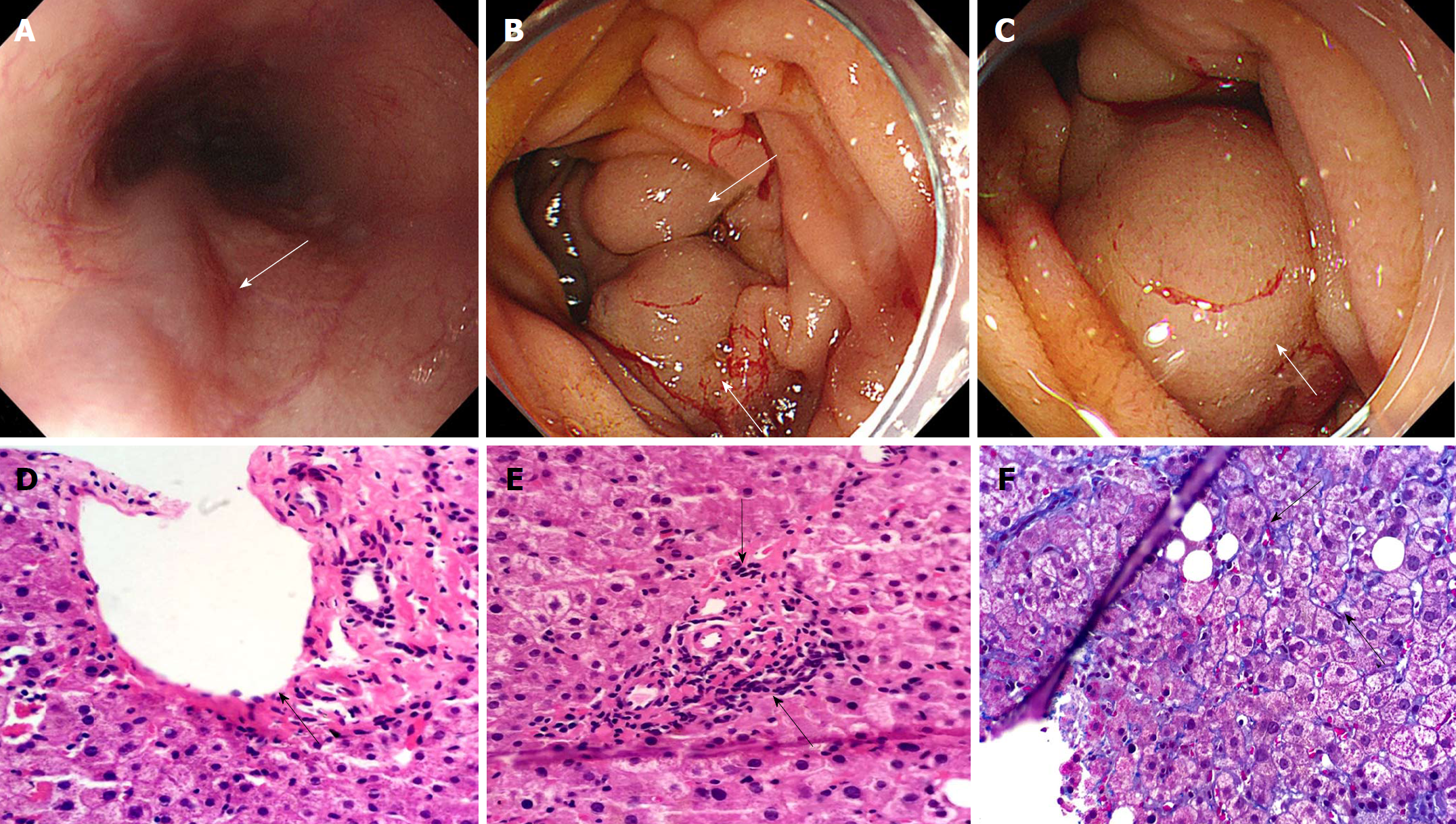 Duodenal variceal bleeding secondary to idiopathic portal