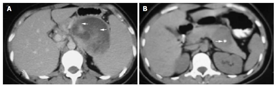 Solid-pseudopapillary tumor of the pancreas: Clinical