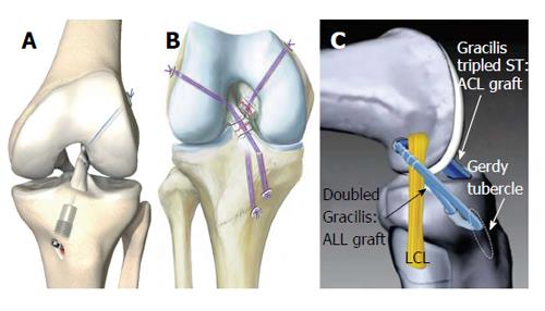 Biomechanics Of The Anterior Cruciate Ligament Physiology Rupture