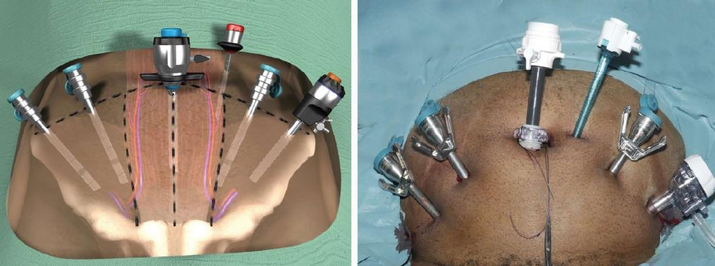 Extraperitoneal Robot Assisted Radical Prostatectomy Comparison