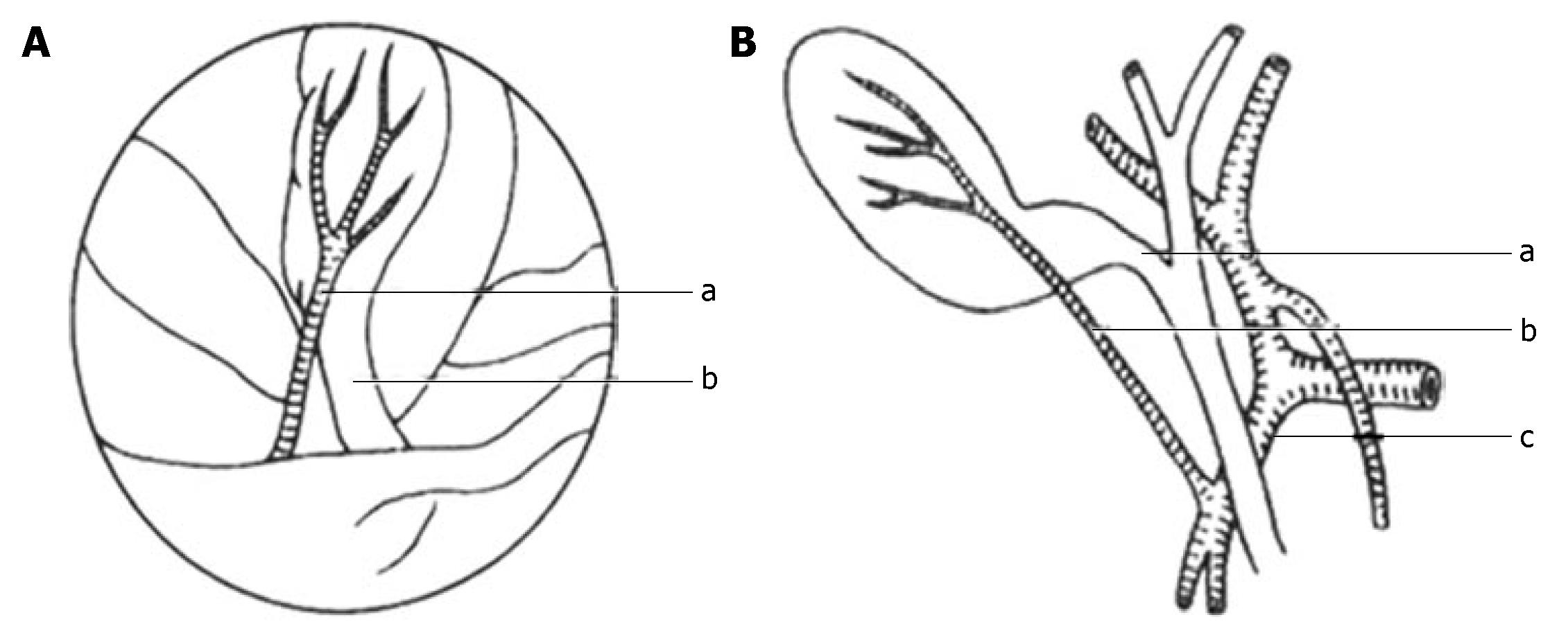 New classification of the anatomic variations of cystic artery ...