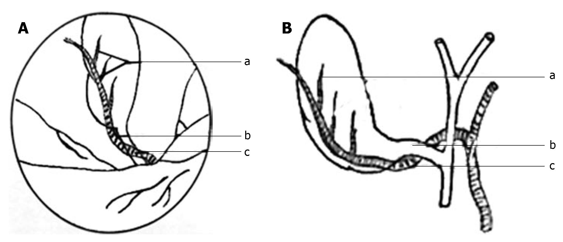 New Classification Of The Anatomic Variations Of Cystic Artery