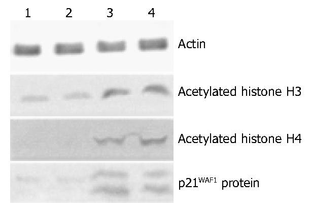 Histone Acetylation Regulates P21waf1 Expression In Human Colon Cancer Cell Lines