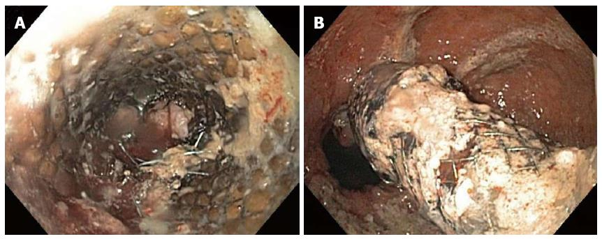 Esophageal Stent Fracture Case Report And Review Of The