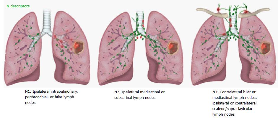 Revisions to the Tumor, Node, Metastasis staging of lung cancer (8th