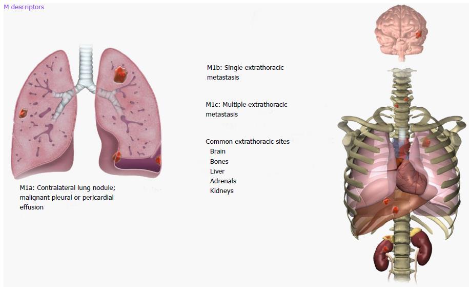 Peritoneal lung metastasis cancer