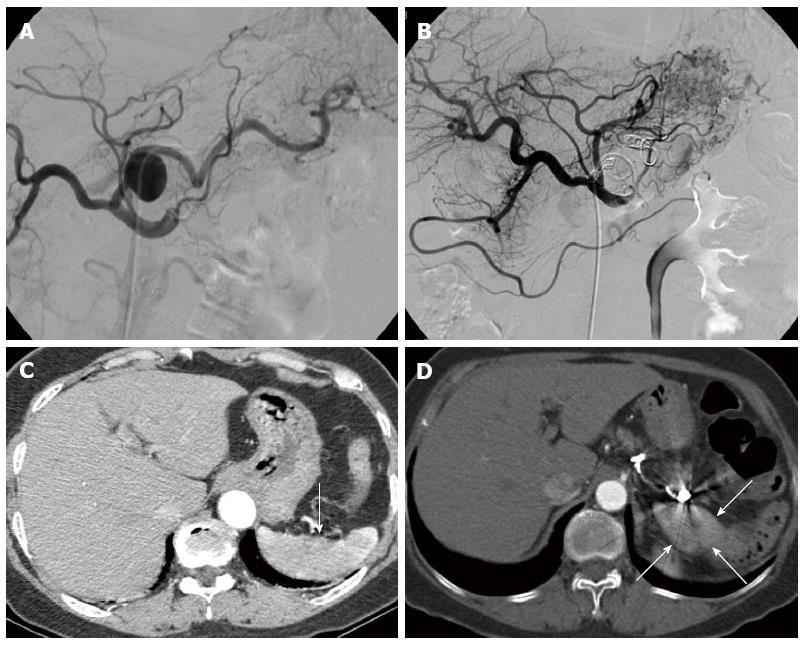 Total Splenic Artery Embolization For Splenic Artery Aneurysms In