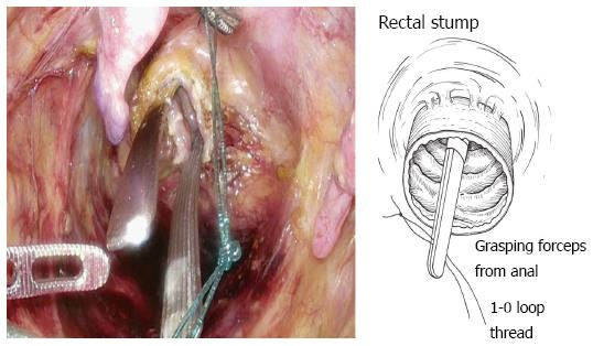 cancer in rectal stump)