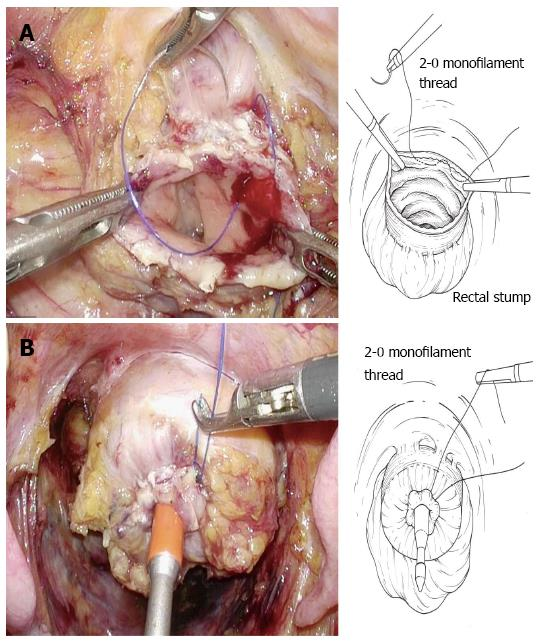 Cancer in rectal stump. Rectal cancer with prostate invasion