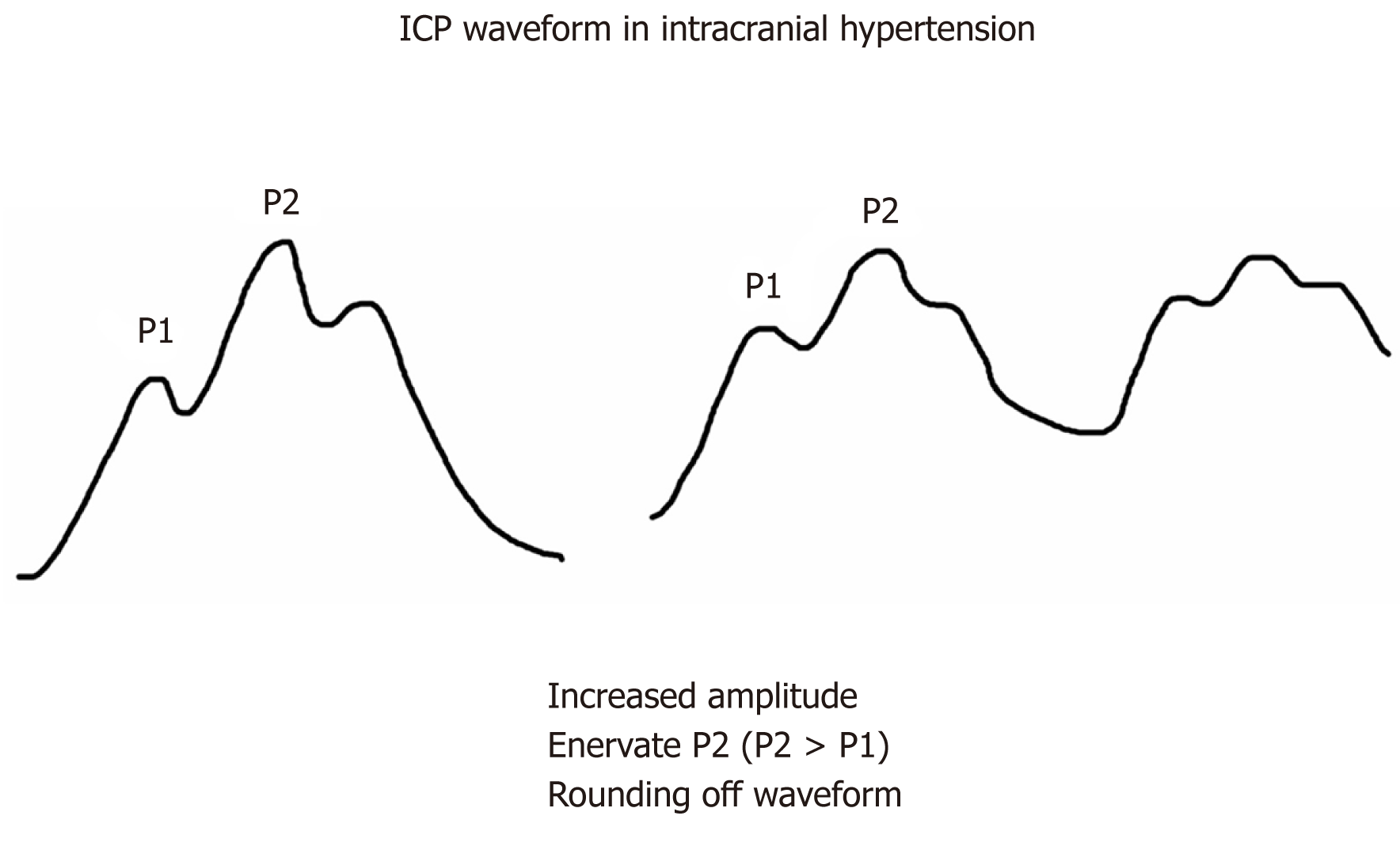 Intracranial pressure monitoring: Gold standard and recent