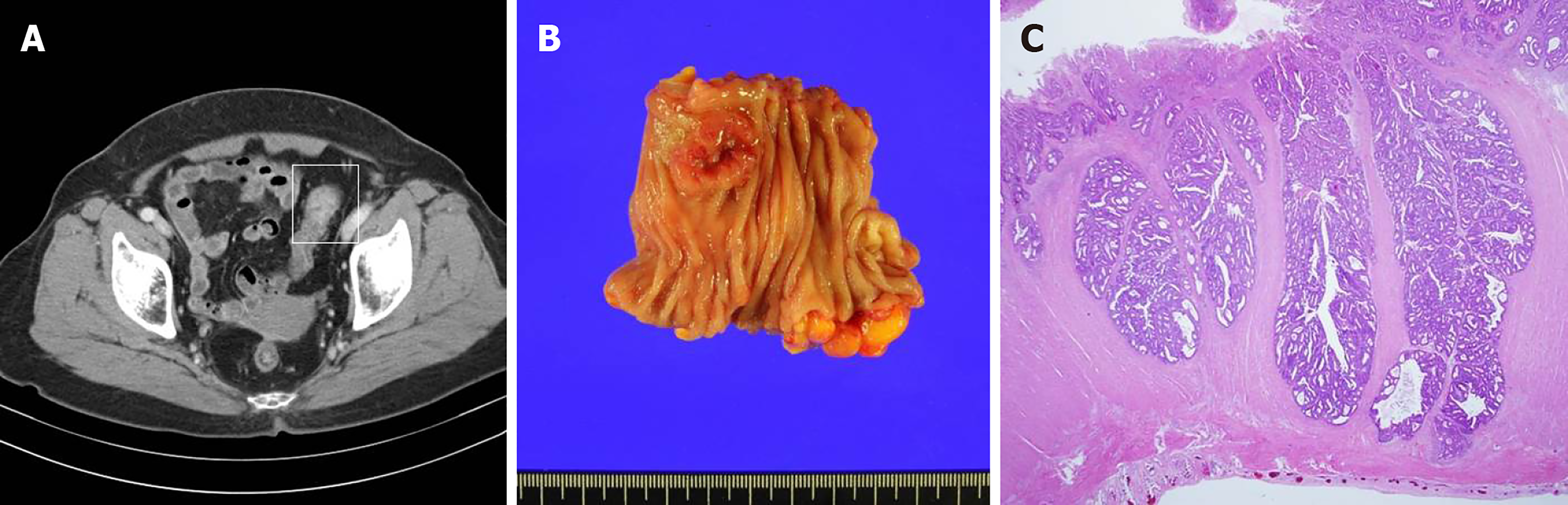 Isolated Vaginal Metastasis From Stage I Colon Cancer A Case Report