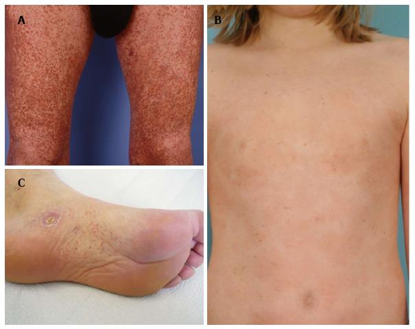 Image result for what is mycosis