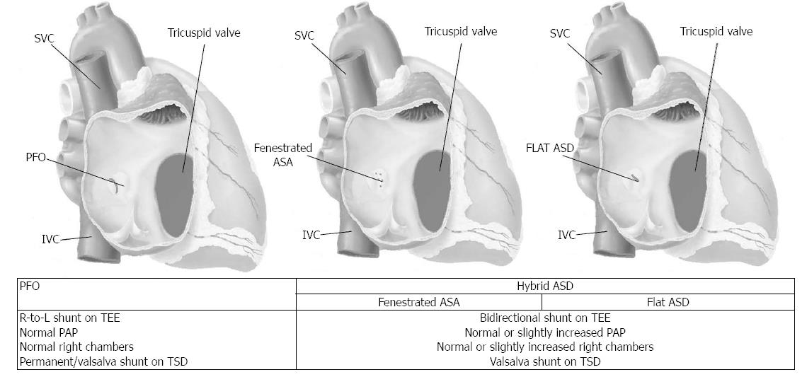 Closing Patent Foramen Ovale In Cryptogenic Stroke The Underscored