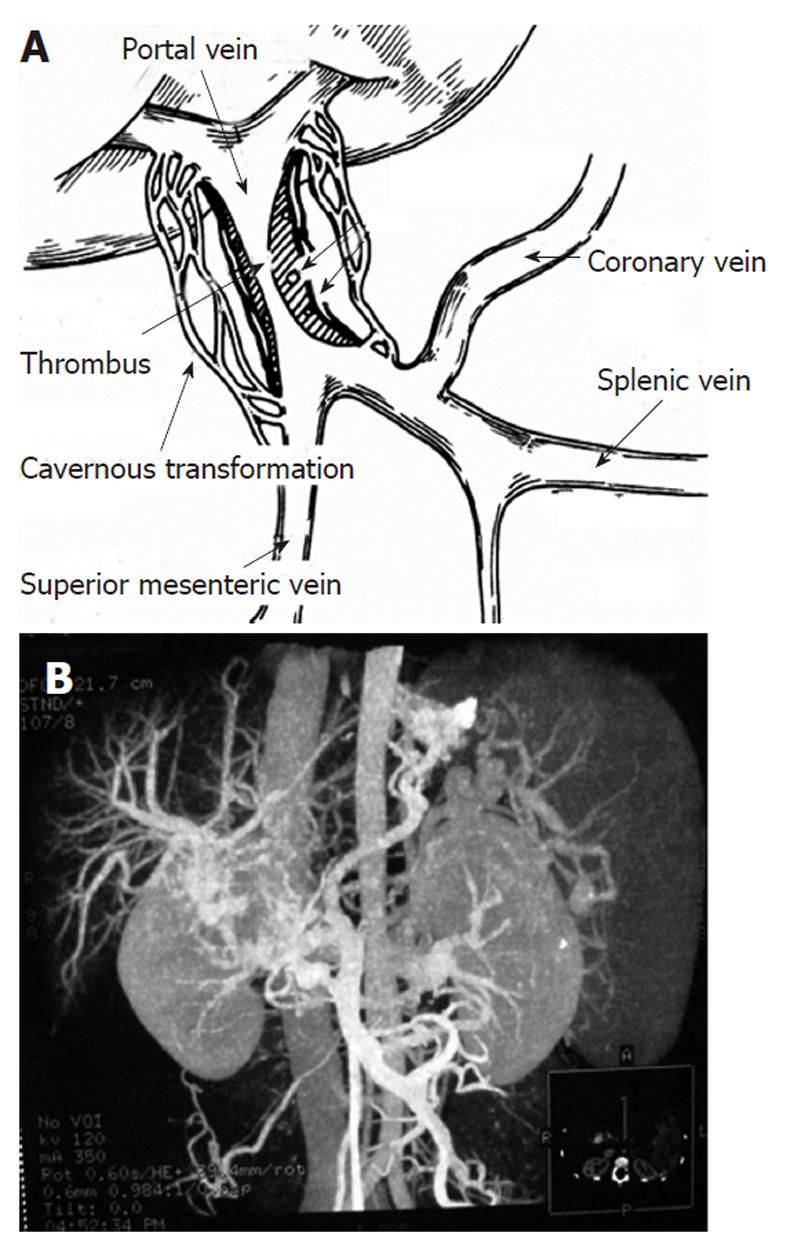 Sixty Four Slice Computed Tomography In Surgical Strategy Of Portal